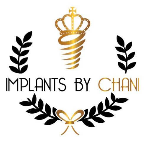implantsbychani