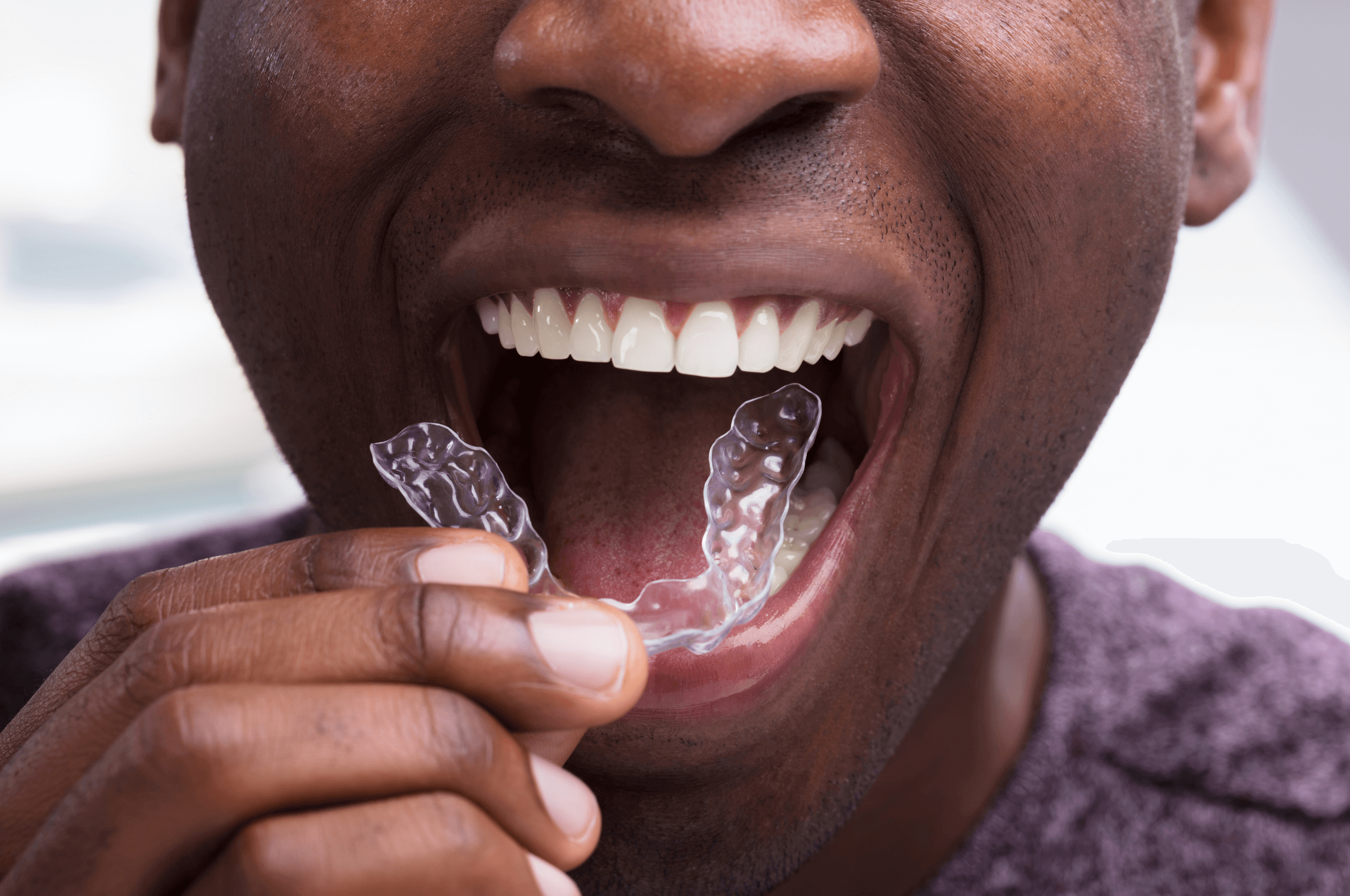 5 Reasons You Should Get Invisalign